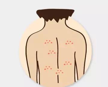 超全面部痘痘分析图 让痘痘告诉你哪儿生病了
